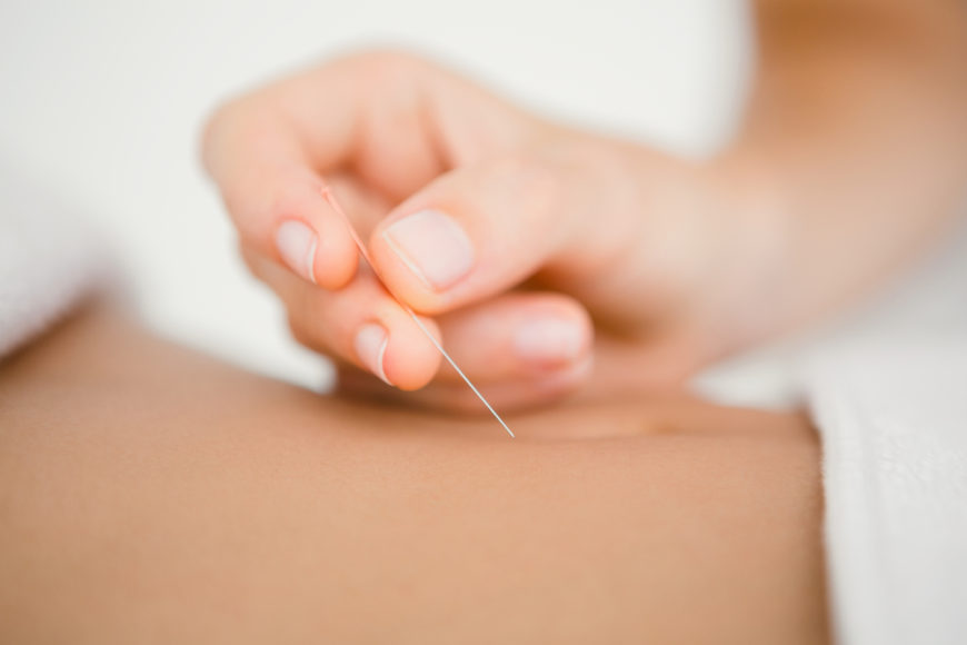 Innovative Los Angeles Spa offers acupuncture